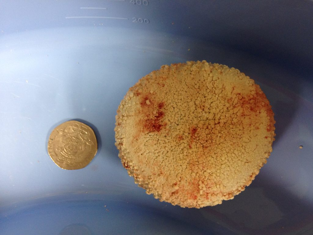 the-bladder-stone-removed-from-sheba